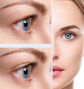 Eyelid lift/tightening
